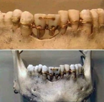 dental work in ancient Egypt